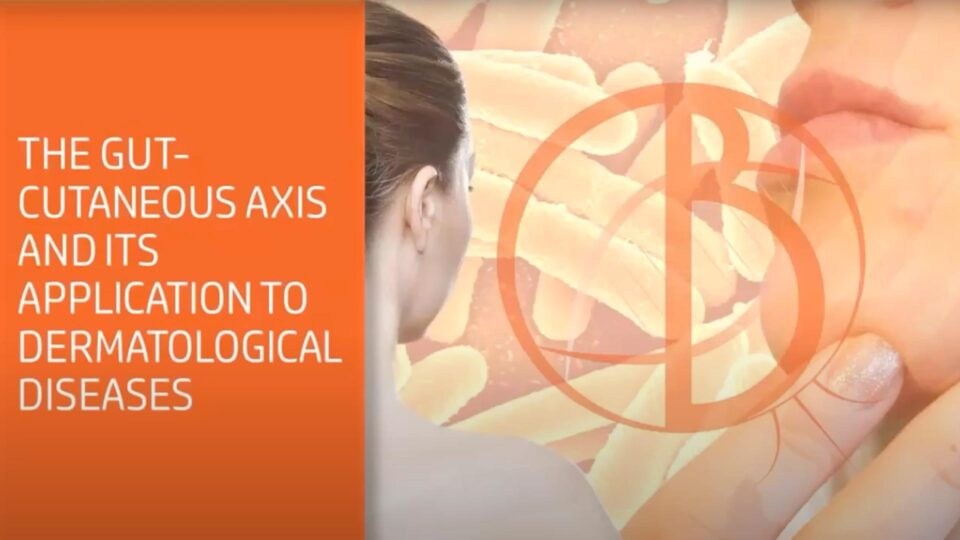 The-gut-cutaneous-axis-and-its-application-to-dermatological-diseases